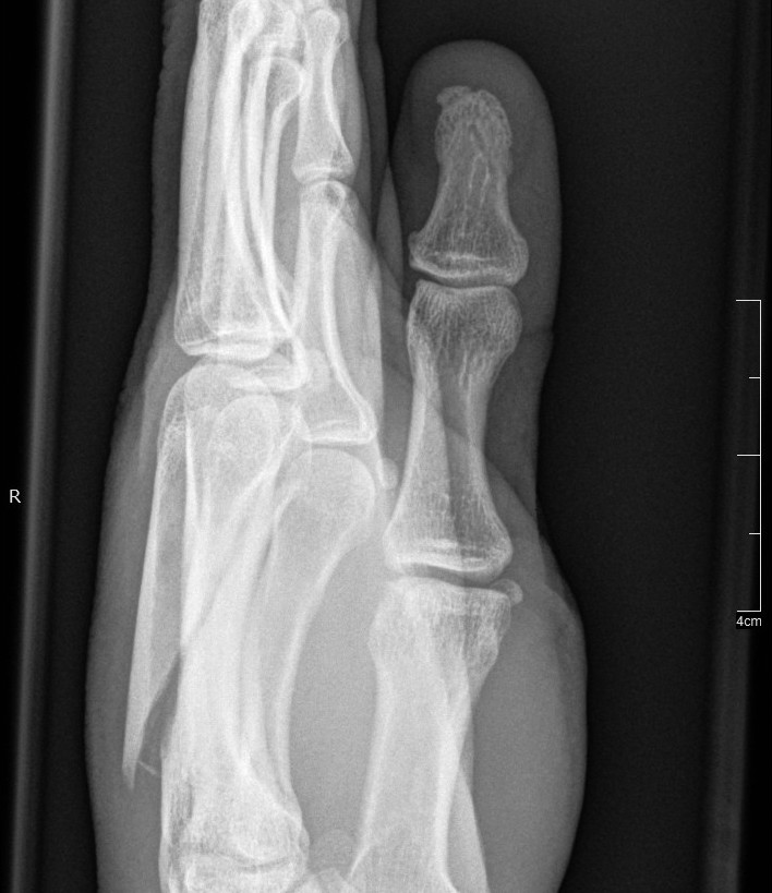 Side view of my left hand (fingers up, thumb closest to you). The spiky shard of bone bottom-left shouldn't be there!